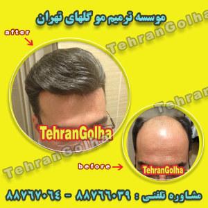 ترميم مو گلهاي تهران