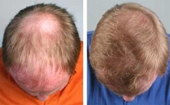 هزینه ترمیم مو چقدر است